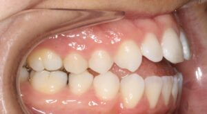 Right Side View of Teeth Edmonton