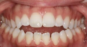 Patient in need of braces Edmonton