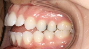 Left Side View of Teeth Edmonton