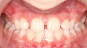 Gap in front teeth