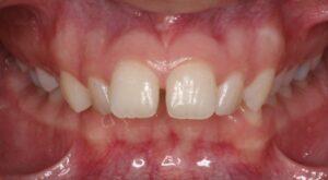 Gap in teeth Edmonton