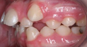 Crooked Teeth Left Side of Mouth