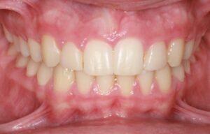 Front teeth of patient