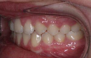 Left Side View of Teeth