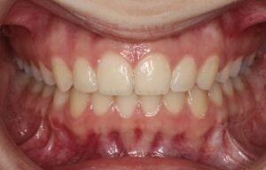 Front Side View of Teeth Edmonton