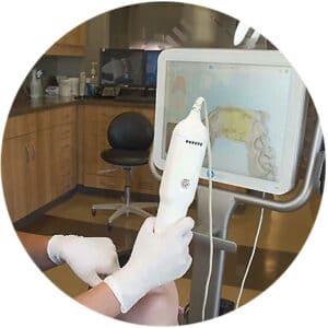 Orthodontic Scan